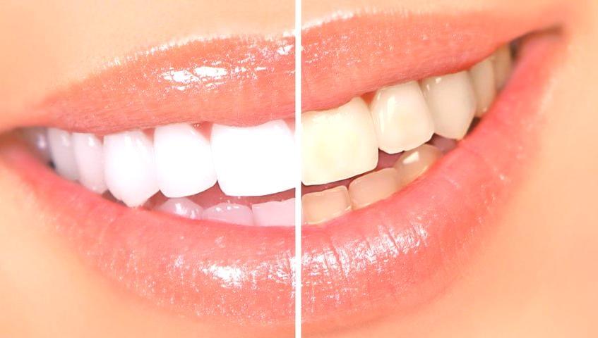 Jak wybielić zęby i olśniewać uśmiechem?