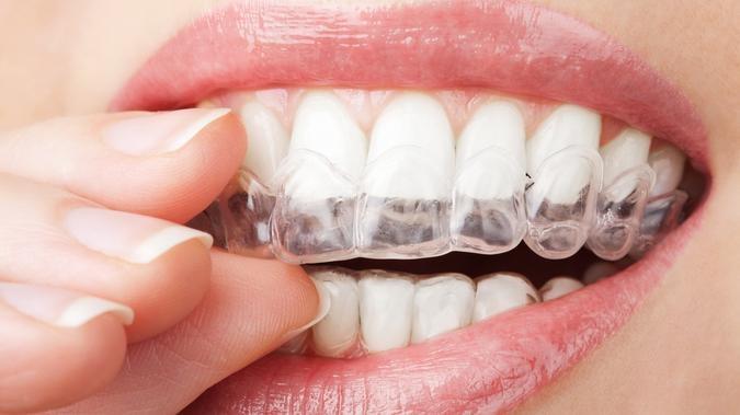 Nakładki wybielające na zęby