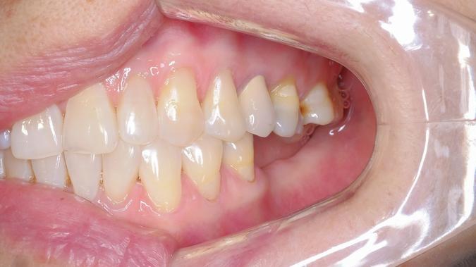 Przyczyny przebarwienia na zębach i zmiany koloru szkliwa