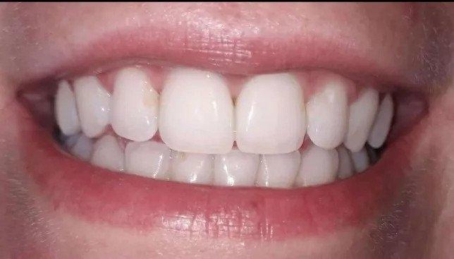 Wybielająca pasta do zębów - jaką wybrać, aby nie przepłacić?