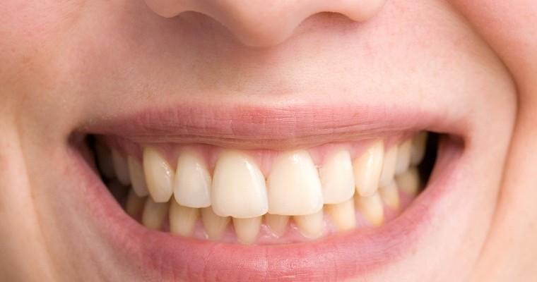 Żółte zęby - skąd się biorą i czemu przyjmują taki kolor?